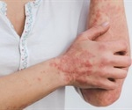 Study explains the link between psoriasis treatment and cardiovascular diseases