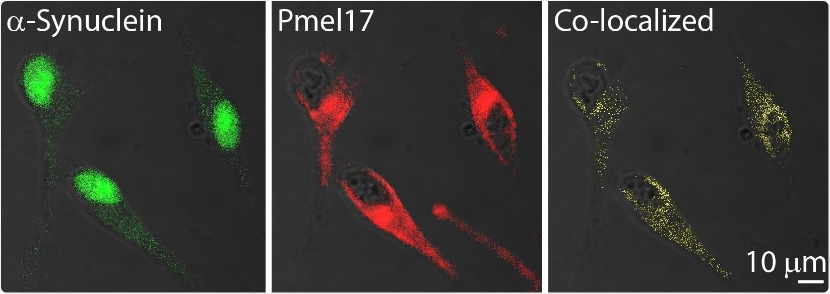 Study indicates an amyloid link between melanoma and Parkinson's disease