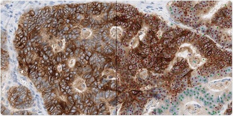 New AI-driven diagnostics technique could transform treatment for bowel cancer