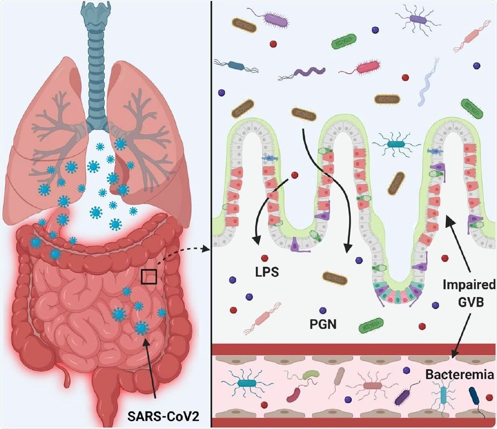 SARS-CoV-2 infection disrupts the gut barrier and leads to elevation of systemic bacterial lipopolysaccharide and peptidoglycan and serves to enhance systemic inflammation. Therefore, leaky gut and microbial dysbiosis could contribute to cytokine storm in patients severely ill with COVID -19.