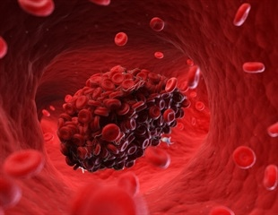 The interaction between blood clotting and SARS-CoV-2 infection