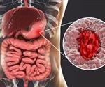 Peptic Ulcer History