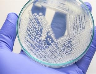 Researchers manufacture the SARS-CoV-2 RBD in pichia