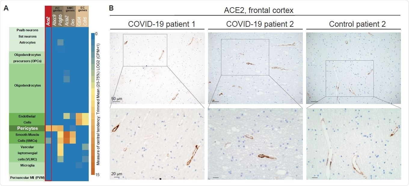 The ACE2 receptor is expressed by pericytes in murine and human brain. (A) Expression of Ace2 in then annotated cell types in the mouse brain based on the Allen Mouse Brain Atlas. (B) Representative IHC staining of peri-vascular ACE2 in the frontal cortex of two COVID-19 patients and one control individual. Cell nuclei are counterstained with hematoxylin (blue).