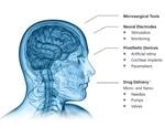 Nanoimprint Lithography: Bio and Medical Technology