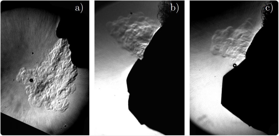 Representación de Schlieren de una persona exhalando (a) desenmascarada (b) con una máscara quirúrgica (c) con una máscara FFP2.  La temperatura actúa como una métrica negativa con respecto al transporte turbulento, de la misma manera que lo hacen el dióxido de carbono y los pequeños aerosoles.  La tecnología de Schlieren muestra diferencias locales en el índice de refracción del aire producido por el aire caliente que sale del cuerpo.