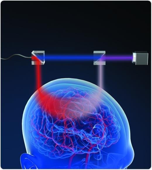 El nuevo, no invasor método mide el flujo de sangre del cerebro con la luz