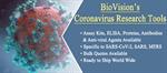 Coronavirus Research Tools: Assay kits, ELISA, Proteins, Antibodies and More
