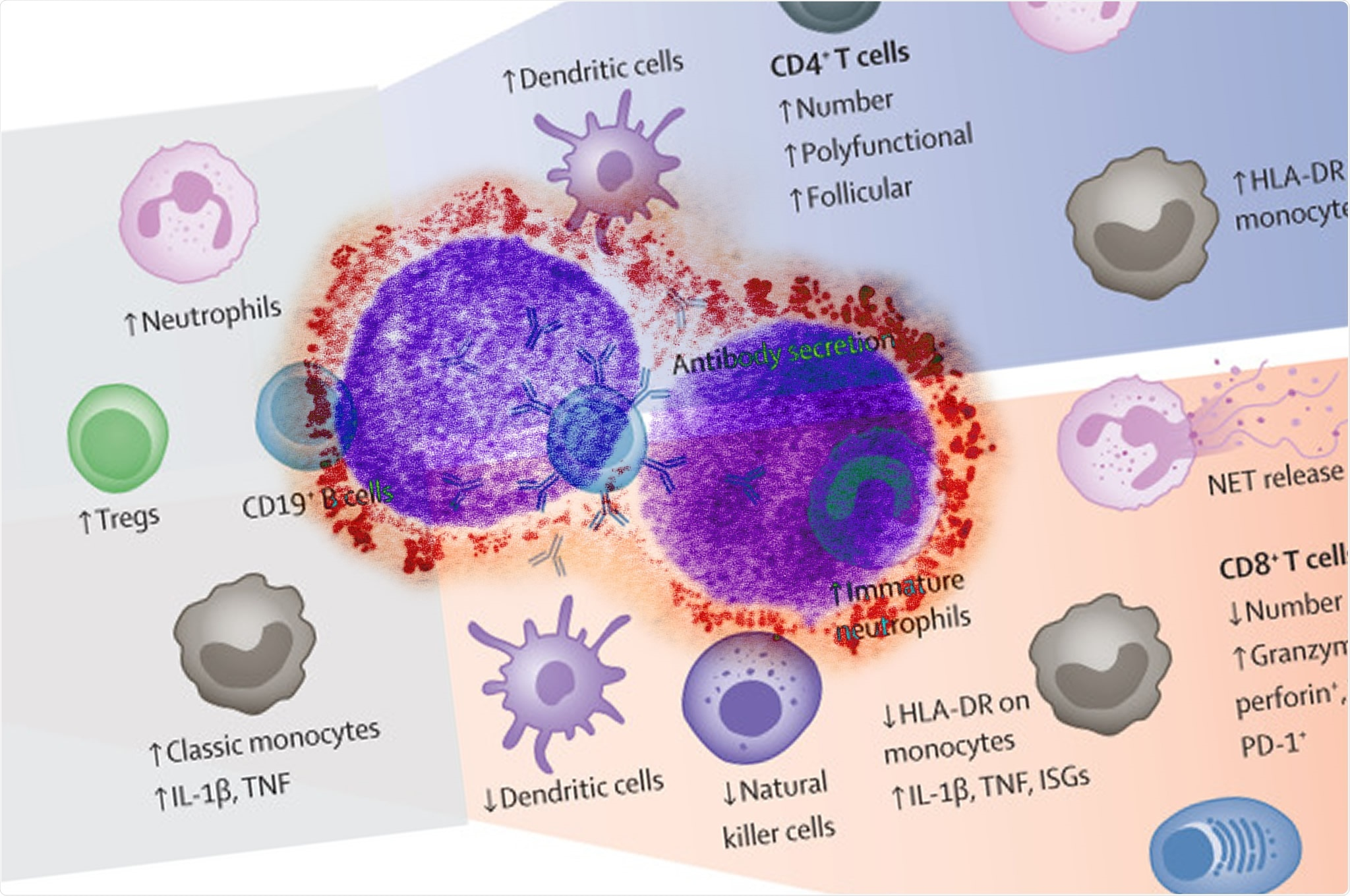 Study: The COVID-19 puzzle: deciphering pathophysiology and phenotypes of a new disease entity. Image Credit: The Lancet: NIAID