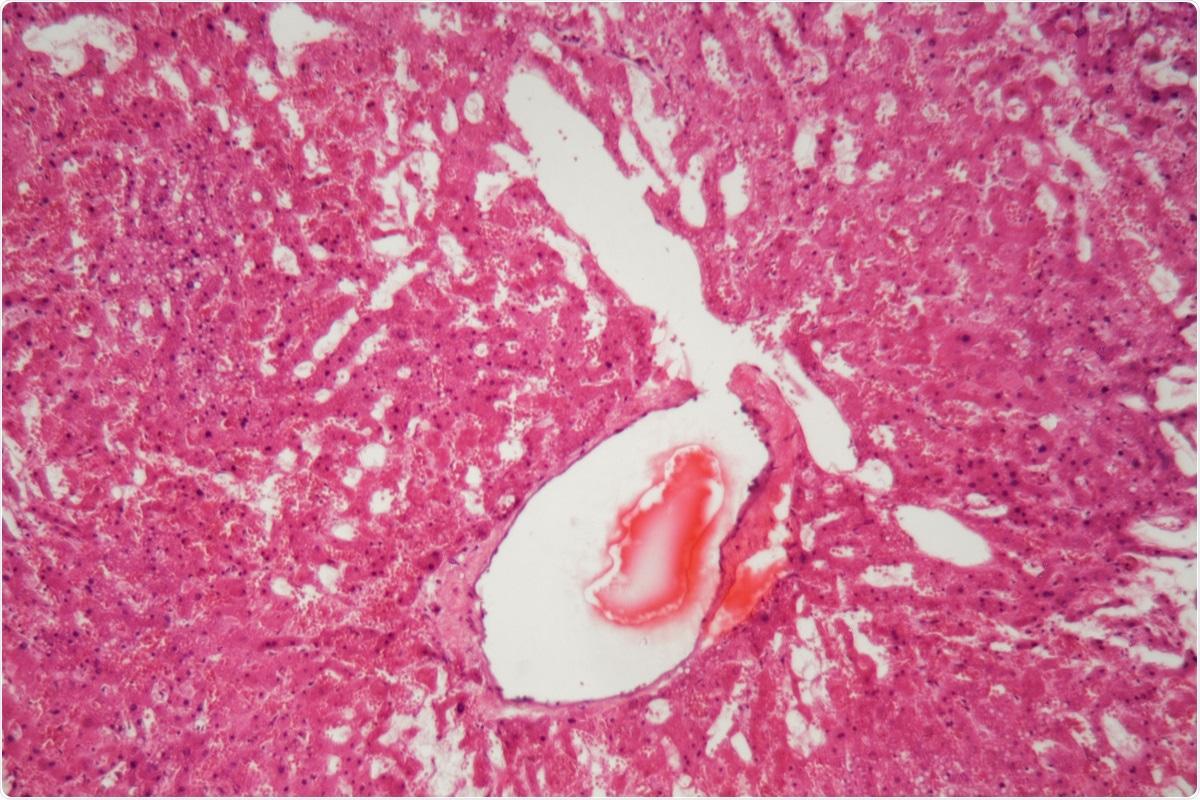 Estudio: El efecto de las infecciones SARS-COV-2 sobre la formación amiloidea de haber de imagen amiloideo del suero A.: ChWeiss/Shutterstock