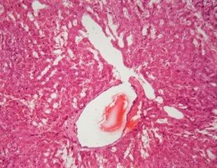 Can SARS-CoV-2 trigger amyloidosis?