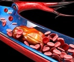 A study reports the first case of an upper extremity deep vein thrombosis (DVT) recurrence due to COVID-19 infection