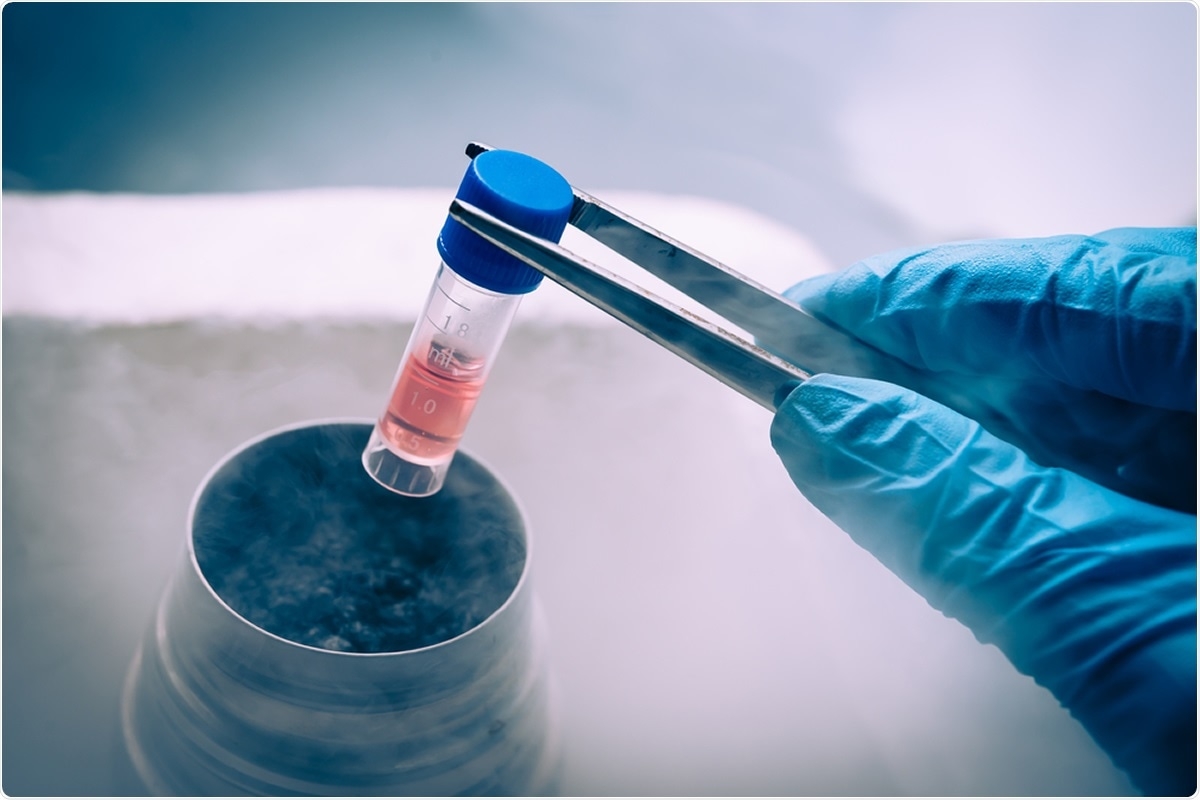 Systematic review: Stem cell therapy in COVID-19: Pooled evidence from SARS-CoV-2, SARS-CoV, MERS-CoV and ARDS. Image Credit: Elena Pavlovich / Shutterstock