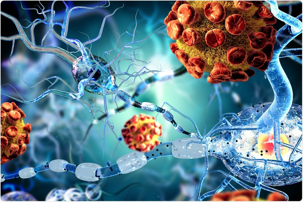 Study: Infection of brain pericytes underlying neuropathology of COVID-19 patients. Image Credit: Ralwell / Shutterstock