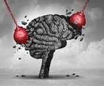 Study finds one-third of COVID-19 patients experience neurological symptoms