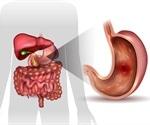 Peptic Ulcer Diagnosis