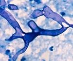 Black fungus complicates India's COVID pandemic