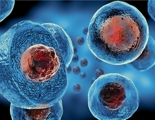 Could stem cells improve the outcome of ARDS in severe COVID-19?