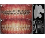 The role of micro-CT in orthodontic bracket removal procedures