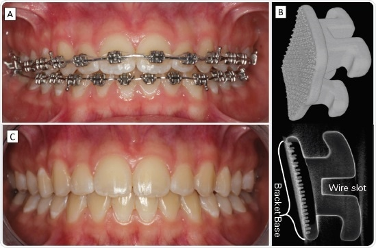 To align teeth (A) orthodontists use brackets (B) and wires that apply forces to change tooth position and angle. Treatment ends (C) with bracket removal, when the teeth and dental arches have reached aesthetic, harmonious well-matching relations leading to functional occlusion and pleasing smile.
