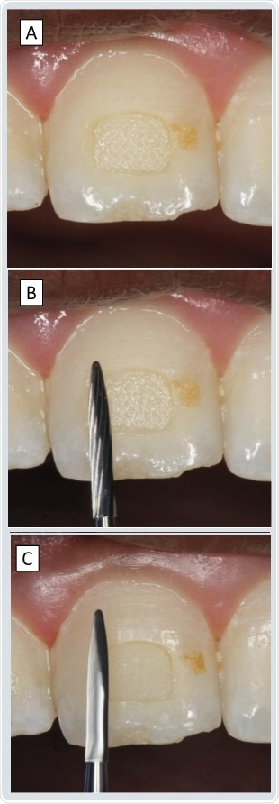 These example burs are designed to gently remove polymer and composite adhering to the outer tooth surface. Although informative, the optical images (A) provide only partial information about the 3D design of the tool with little information on how it operates. Tomographic imaging (B) helps to better understand its mode of action.