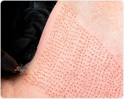 Plasma lifting procedure of neck wrinkles.