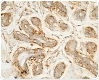 mmunochemical staining of human target D in human breast carcinoma with mouse mAb.