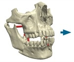 Simpleware ScanIP Medical Receives FDA 510(k) Clearance for 3D Medical Printing
