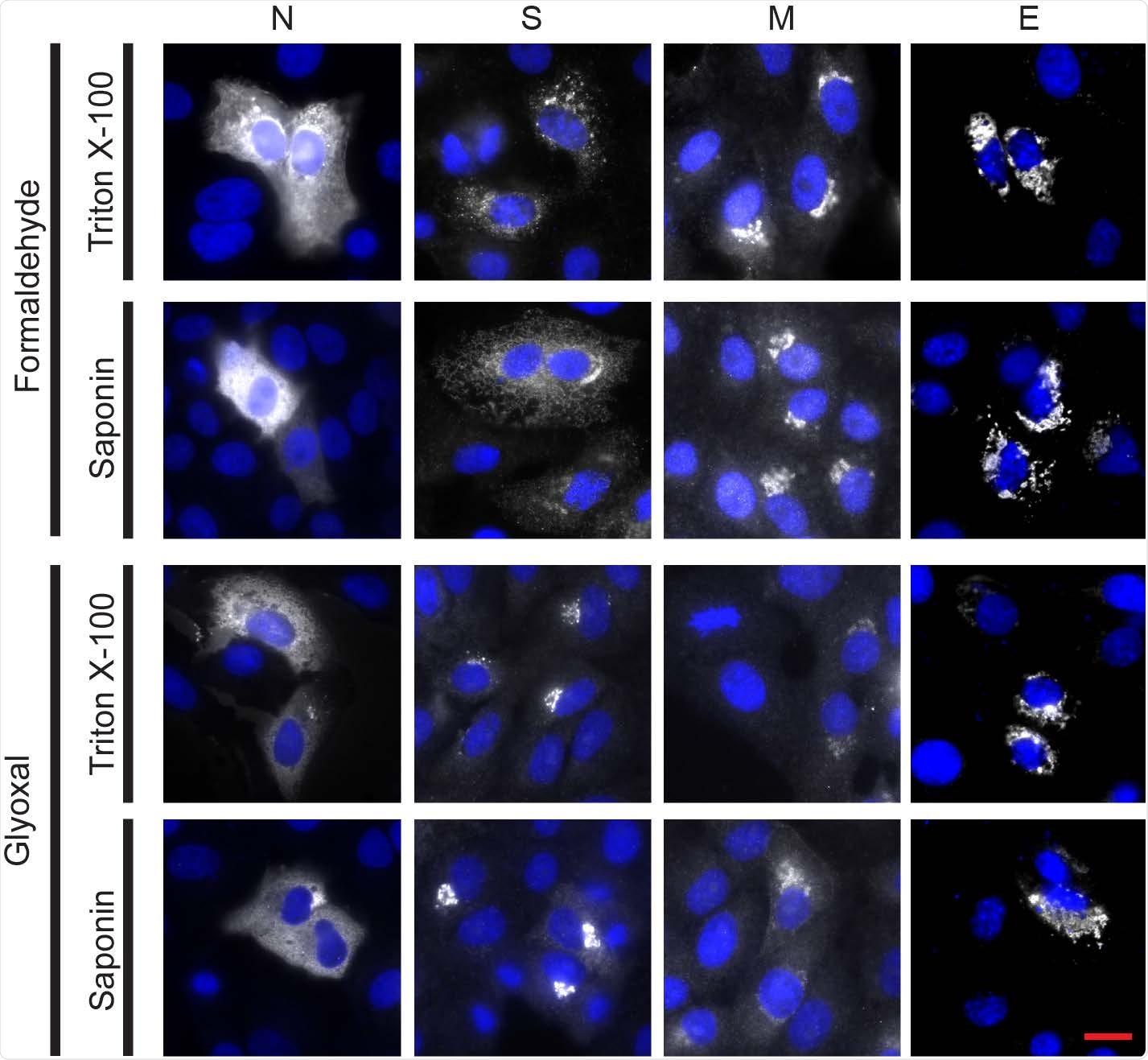 Immunostaining delle quattro proteine strutturali di SARS-CoV-2 (nucleocapsid (n), la punta (s), la membrana (m) e la busta riuscivano per tutti gli stati di fissazione ed anticorpi selezionati. Le celle di Vero transfected per esprimere ciascuna delle quattro proteine virali. Immunostaining riusciva per tutta la (formaldeide o gliossale) chimica di fissazione e gli stati di permeabilization (tritone X-100 o saponina) hanno provato. Il reticolo della proteina della punta era differente nei due stati di fissazione provati, sebbene questa differenza non fosse notata nei campioni infettati. La proteina di Nucleocapsid è stata individuata facendo uso di un Fluor 568 di Alexa ha coniugato l