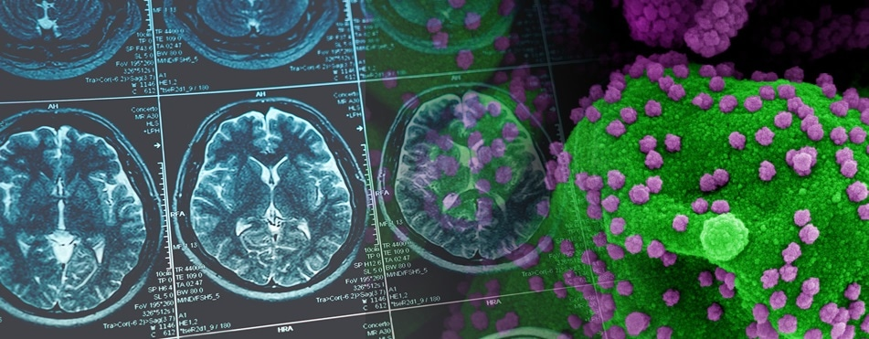 Alarming COVID study indicates long-term loss of gray matter and other brain tissue