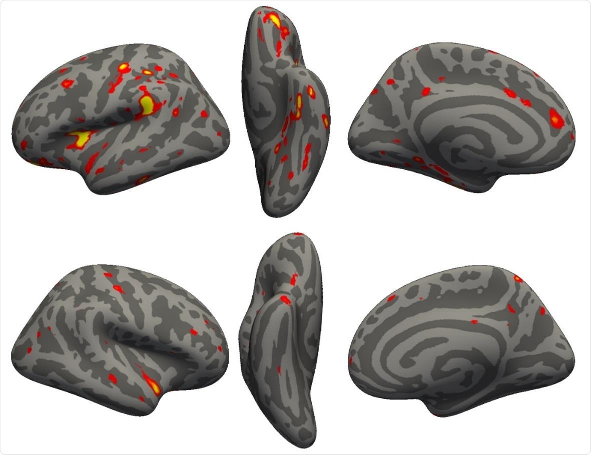 Vertex-wise longitudinal group comparison results in grey matter thickness. Thresholded map ( Z >3) showing the strongest longitudinal differences between the 394 COVID participants and 388 controls. More prominent reduction in cortical thickness between the two scans for the COVID patients can be seen particularly in the left hemisphere in the anterior parahippocampal gyrus (perirhinal cortex), the anterior and lateral orbital gyrus, superior insula, supramarginal gyrus and anterior cingulate cortex. In the right hemisphere, there is also a notable reduction of grey matter thickness in the temporal pole (also weakly present in the left hemisphere).