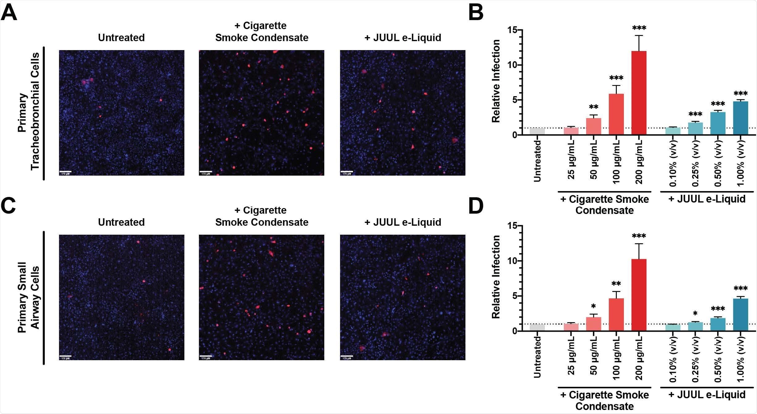 A exposição condensada do fumo do cigarro aumenta a infecção de SARS-CoV-2 Pseudovirus. (a) tracheobronchial preliminar e as pilhas pequenas da via aérea (c) pre-foram tratados com o e-Líquido de 200 μg/mL CSC (médio) e de 1,00% JUUL (direito) por 24 horas e desafiados com o pseudovirus SARSCoV-2. Depois da incubação por 48 horas, as pilhas vivas eram imaged em um sistema confocal da microscopia do girar-disco (Vox de UltraVIEW; PerkinElmer). Os núcleos de pilha foram manchados com tintura de Hoechst e as pilhas contaminadas foram mostradas no vermelho. A quantificação do cytometry de fluxo da infecção relativa do pseudovirus SARS-CoV-2 em doses diferentes das pilhas tracheobronchial preliminares pre-tratadas e-Líquido de CSC e de JUUL (b) e das pilhas pequenas da via aérea (d) foi relatada como mudança da dobra; n = 11-12 experimentações. As barras representam o ± médio SEM. Teste desirmanado de t * p < 0,05; ** p < 0,005; *** p < 0,0005. Barras da escala, μm 170.