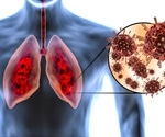 A closer look at how COVID-19 damages human lungs