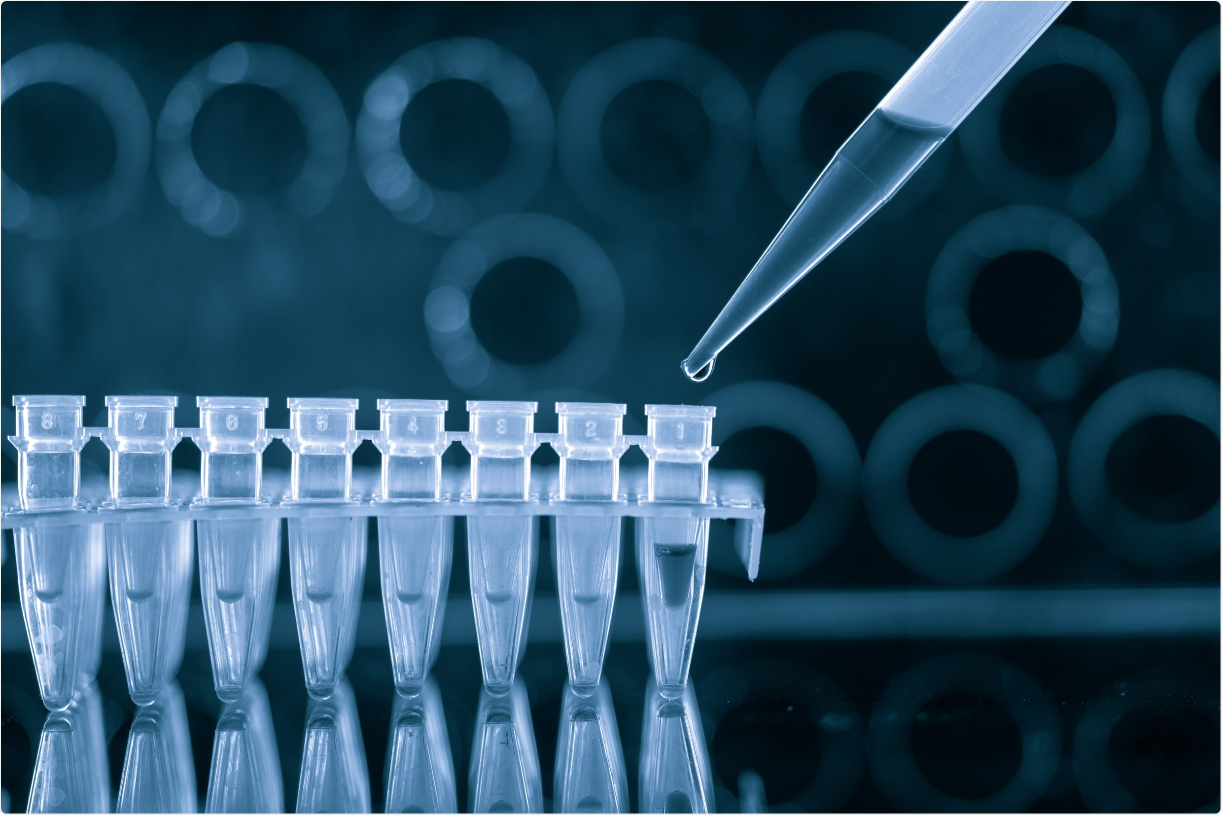 Estudio: La caracterización completa de los pacientes COVID-19 con SARS-CoV-2 en varias ocasiones positivo prueba usando una base de datos electrónica grande del historial médico de los E.E.U.U. Haber de imagen: luchschenF/Shutterstock