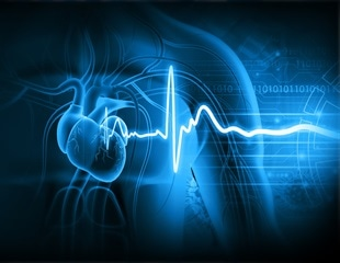 AI ECG as a novel noninvasive approach to diagnosing cardiac injury in COVID-19 patients