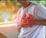 Clinical observations show acute myocarditis developed after mRNA COVID-19 vaccination
