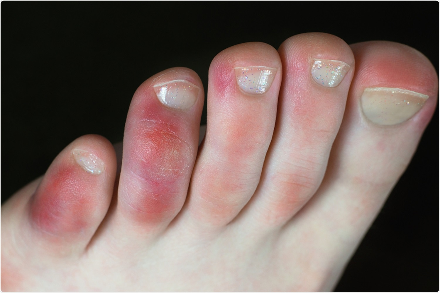 Review: Clinical Manifestations of COVID-19 in the Feet: A Review of Reviews. COVID toes: Image Credit: Tunatura / Shutterstock
