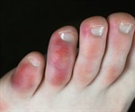 COVID-19 symptoms in the feet