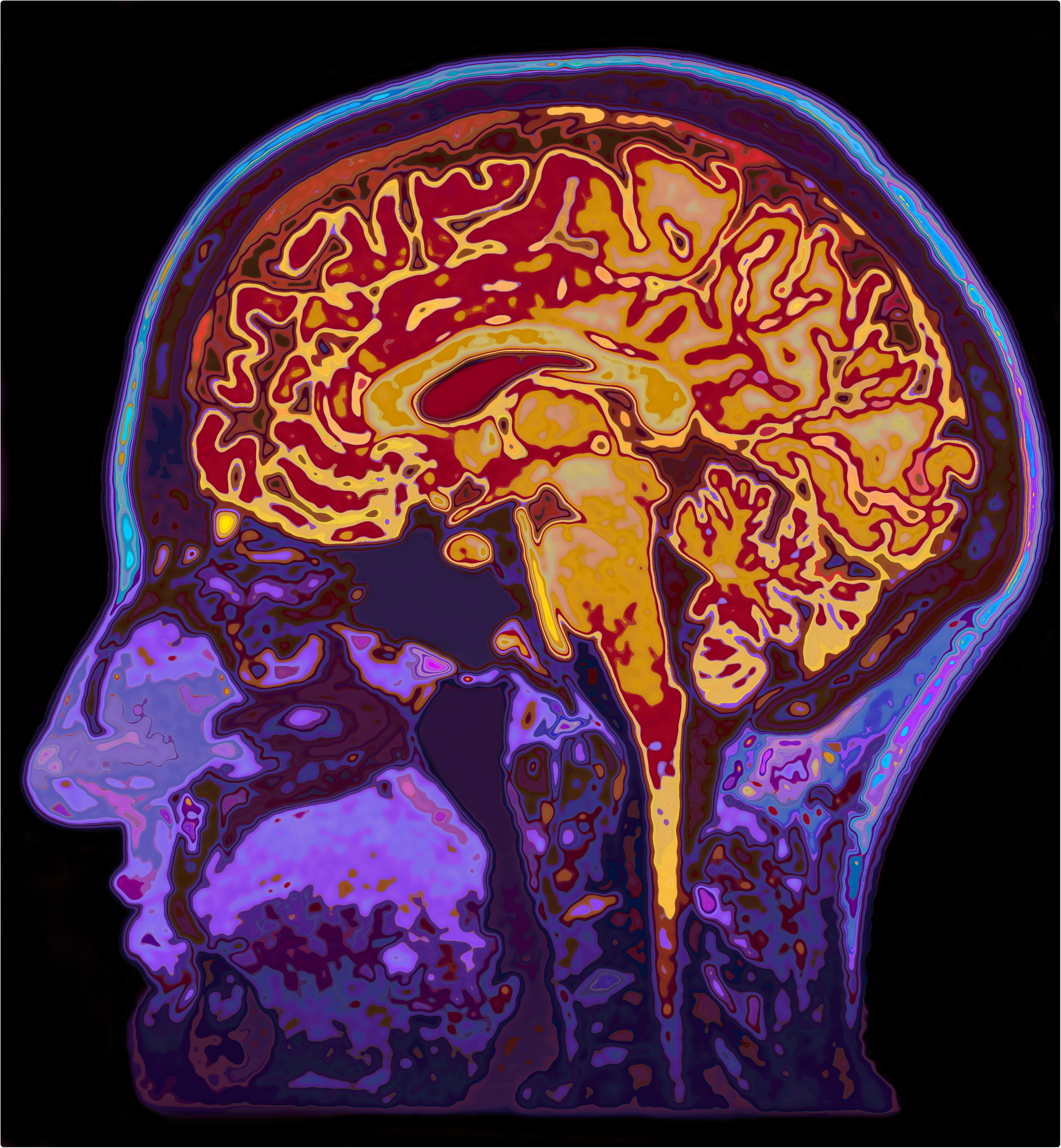 MRI Image of the human brain. Image Credit: SpeedKingz / Shutterstock