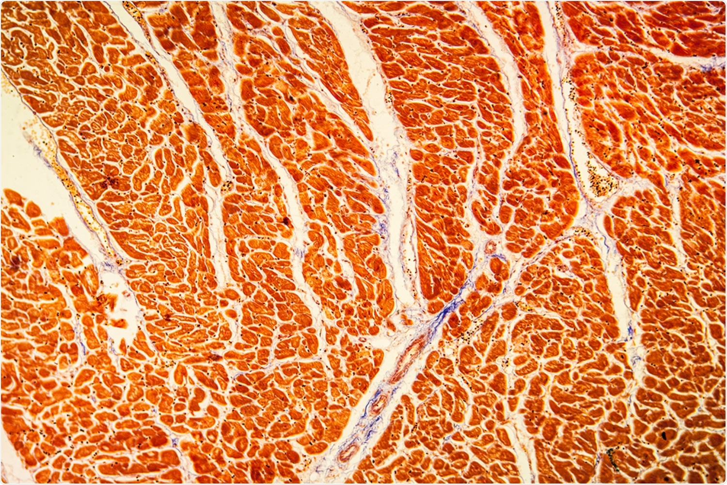 Myocarditis and Pericarditis Following mRNA COVID-19 Vaccination. Image Credit: Dr. Norbert Lange / Shutterstock