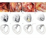 Novel surgical technique shows promise to repair ruptures caused by heart attacks