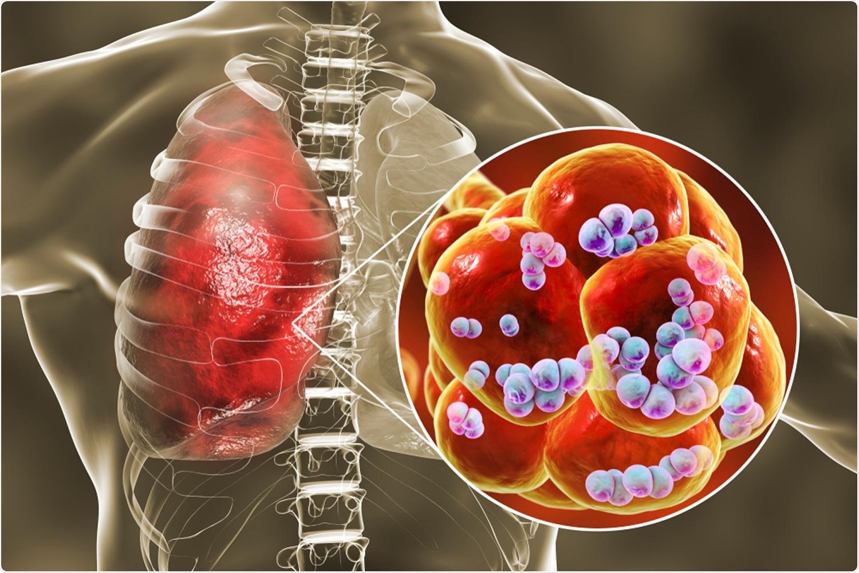 Study: Streptococcus pneumoniae colonisation associates with impaired adaptive immune responses against SARS-CoV-2. Image Credit: Kateryna Kon