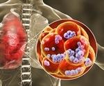 Streptococcus pneumoniae modulates host immunity to SARS-CoV-2