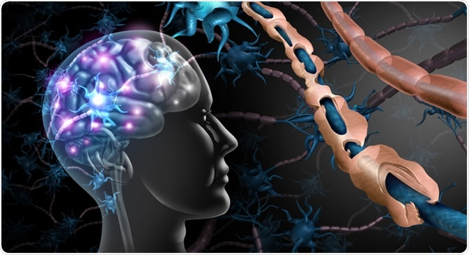 Multiple Sclerosis Concept