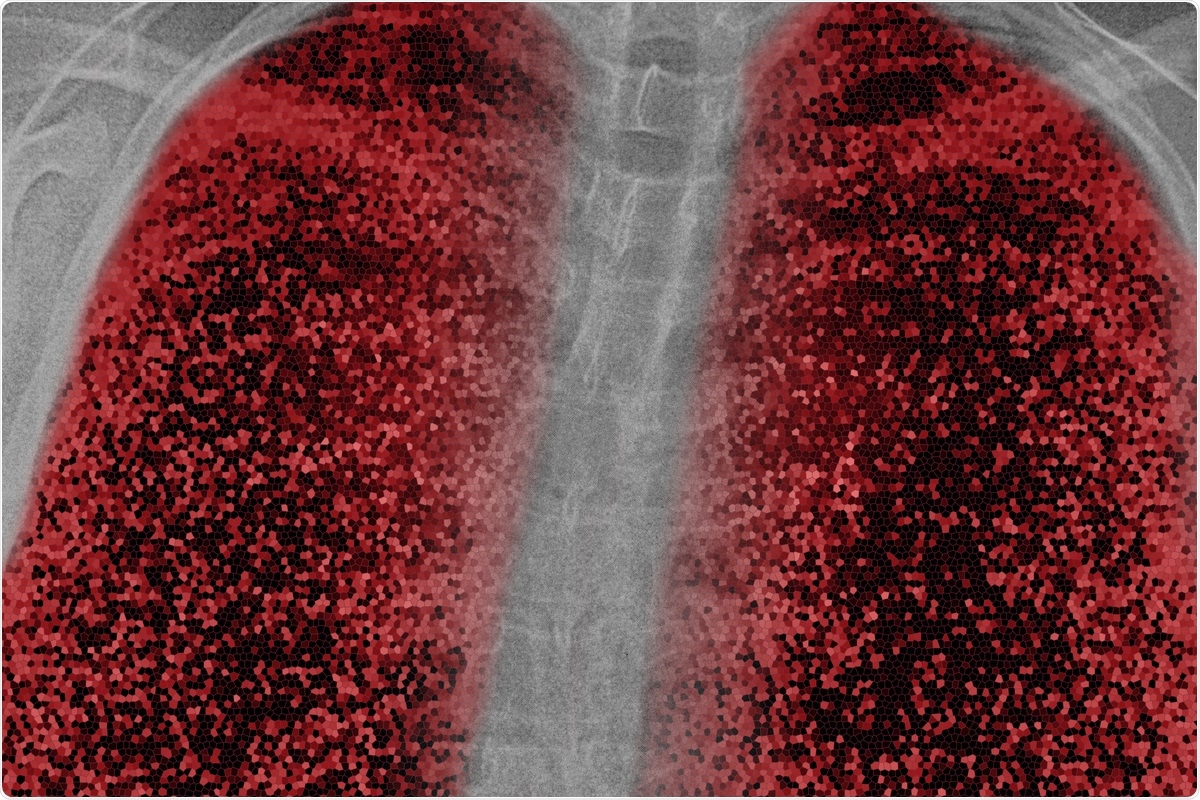 Study: Host factors facilitating SARS‐CoV‐2 virus infection and replication in the lungs. Image Credit: nnattalli / Shutterstock