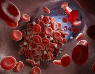 Preventing lethal blood clots