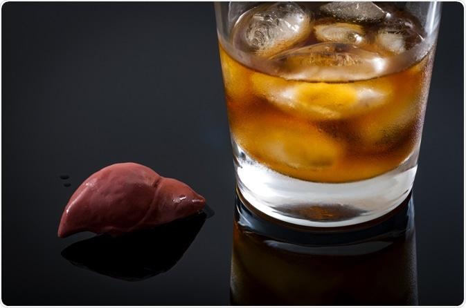 What is Alcoholic Hepatitis?
