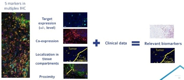 Multiplex IHC allows for analysis of a large number of parameters on a single tissue section. Compiling multiplex IHC results with clinical data can allow for the identification of a more targeted biomarker approach for late phase clinical trials.