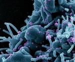 Monoclonal antibody could inform development of pan-coronavirus vaccines