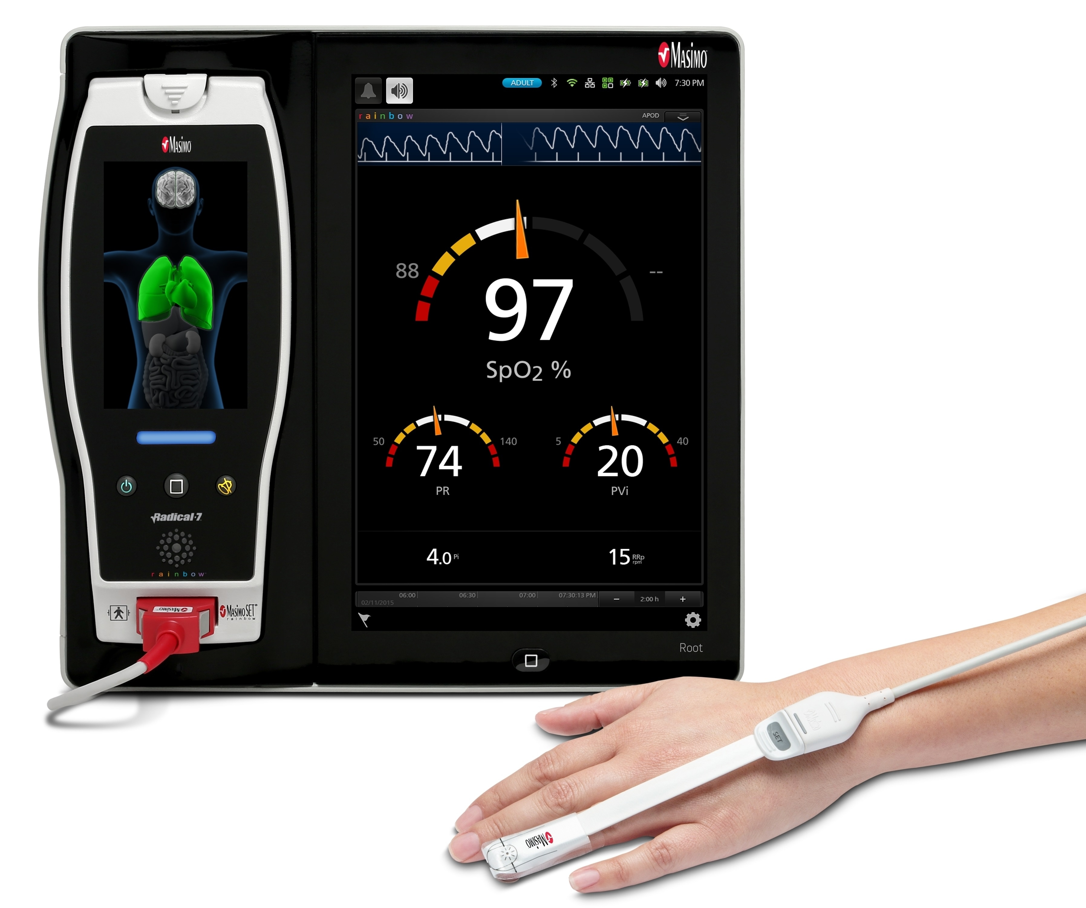 Masimo PVi may provide useful information for monitoring the volume status in spontaneously breathing hemodialysis patients